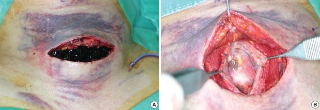 patterns of post thyroidectomy hemorrhage