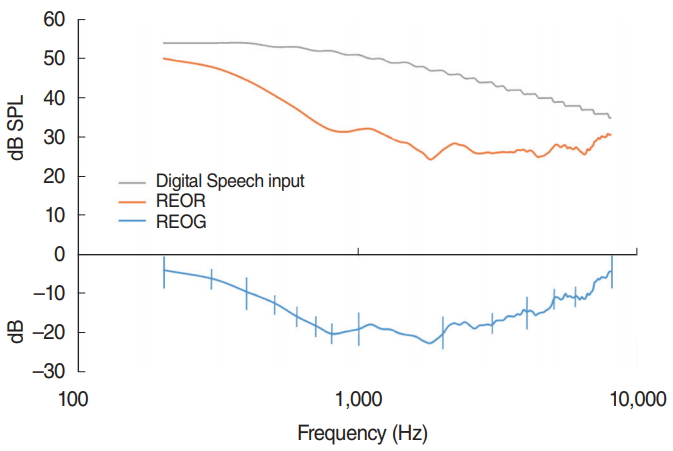 The Effects of Hearing Aid Digital Noise Reduction and