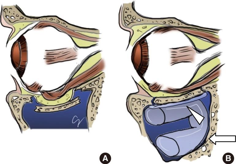 Transantral Orbital Floor Fracture Repair Using A Folded Silastic Tube